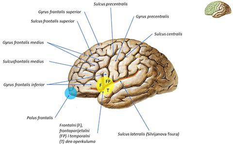 gyrus precentralis, sulcus centralis, polus frontalis, veliko mozak, anatomija, gradja, silvijanova fisura, anatomija čoveka, centralni nervni sistem, medicina, drugi sistemi, zona medicine