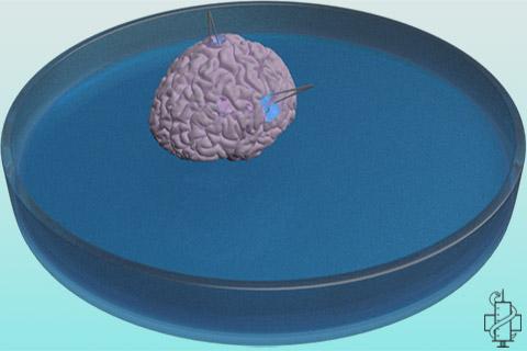 mozak, petrijeva posuda, dish, brain, medicina