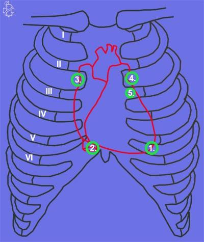 auskultacija srca, srce, tacke, slusanje, stetoskop, mitralno usce, aortno, trikuspidalno, propedevtika, kardiologija, erbova tacka, auskultacija