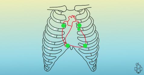 auskultacija srca, slusanje srca