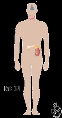 Multipla endokrina neoplazija