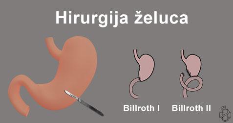 ulkus, hirurgija, lecenje, operacija zeluca, billroth, ekscizija, anterektomija, cir, pouchet