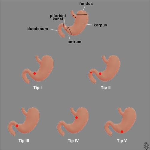 hirurgija ulkusa, hirurgija, surgery, anatomija, ulkus, operacija, operacija ulkusa, zeludac