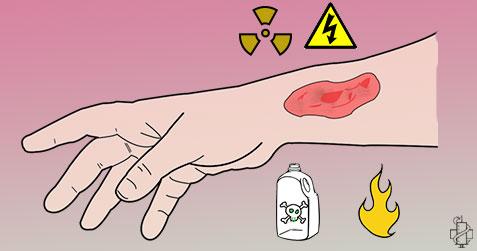 opekotine, opekotine plamenom, opekotine strujemo, opekotine hemikalijama, sok