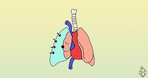 pneumotoraks, disanje, gusenje, pluca, trauma, hirurgija, simptomi, znaci