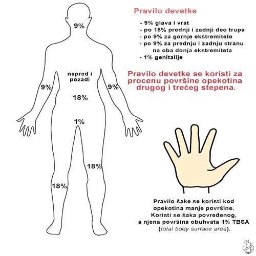 lecenje opekotina, pravilo devetke, pravilo sake, hirurgija opekotina, operacije, surgery, total body surface area
