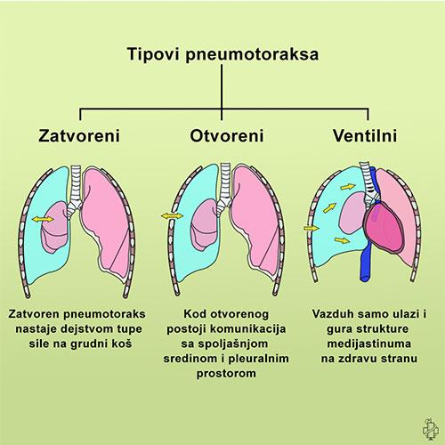pneumotoraks, simptomi, znaci, lecenje, terapija, pluca, disanje