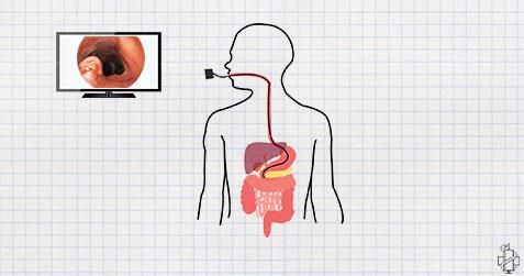 gastroskopija