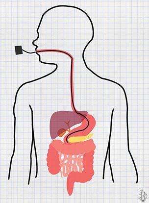 Gastroskopija, cir, nalaz, ulkus, gastritis, pregled zeluca