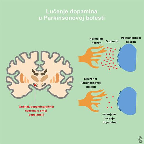 Parkinsonova bolest, dopamin, neuron, diencephalon, medjumozak, parkinson, substantia nigra