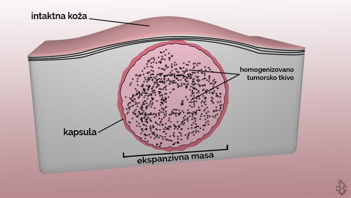 tumor, benigni, kapsula, dobrocudni, masa, neoplazija, neoplazma