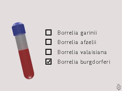 dijagnoza lajmske bolesti, borrelia, borelia, borelia burgdorferi, borrelia garinii