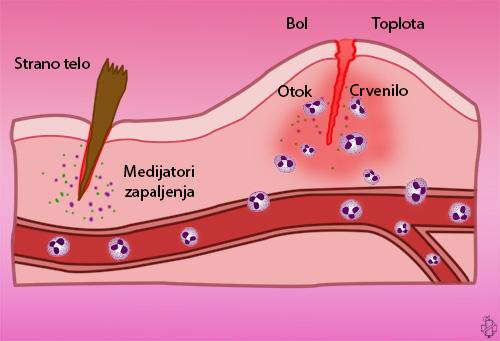zapaljenje, inflamacija, neutrofili, reakcija zapaljenja, upala, trovanje, leukociti