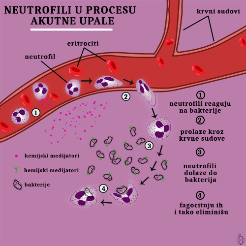akutno zapaljenje, upala, neutrofili, neutrofilija, leukocitoza, bakterije, infekcija, bakterijska infekcija, fagocitoza